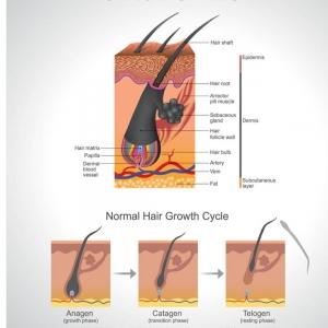 Xtra Tratament calvitie 5 fiole x 5ml